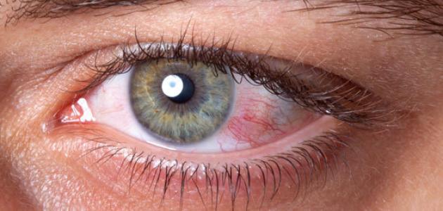 اسباب-وعلاج-امراض-العين