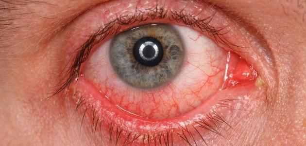 امراض-ومشكلات-قرنية-العين